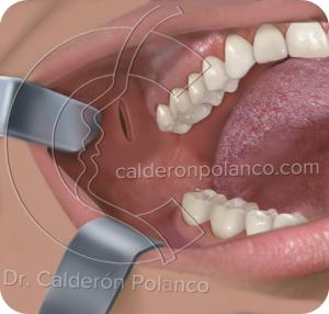 Dr  Javier Calderón Polanco » BIchectomía: extirpación de la