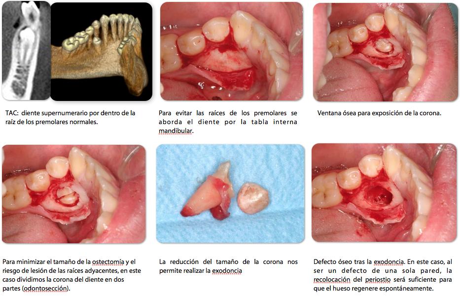 Ciruga maxilofacial en la extraccin de las muelas del juicio