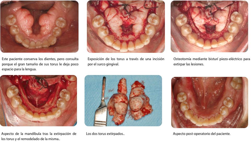 CASO 2 Torus con dientes