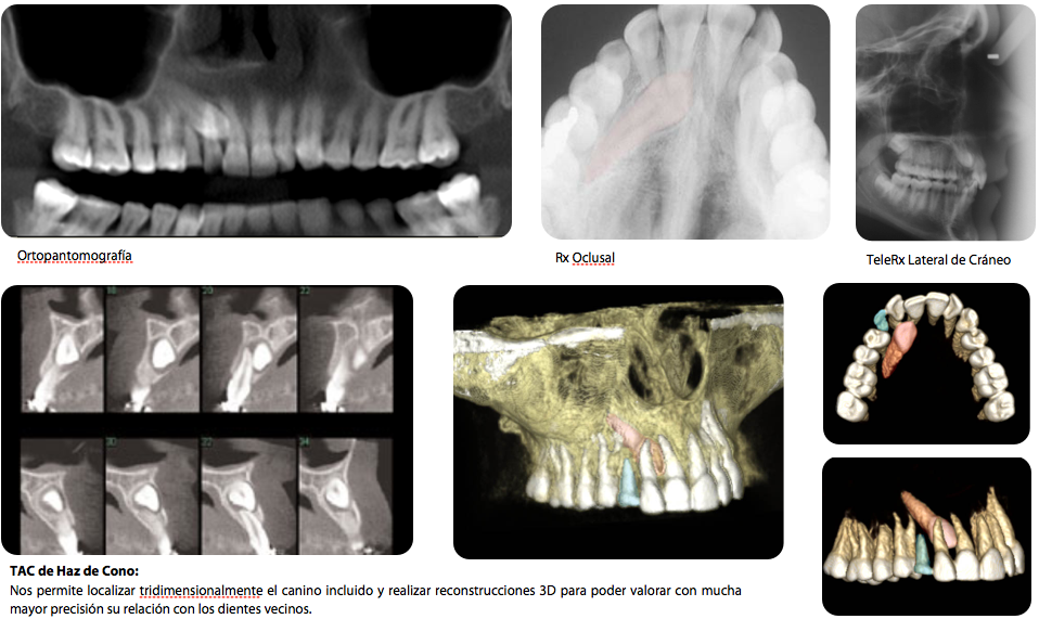 Canino incluido, radiologia y TAC