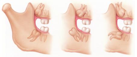 cordal incluido, terceros molares, mesioangulado, distoangulado, muela del juicio
