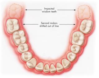 Apiñamiento dentario, cordales