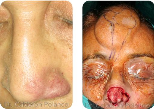 Colgajo Frontal reconstrucción nasal A1