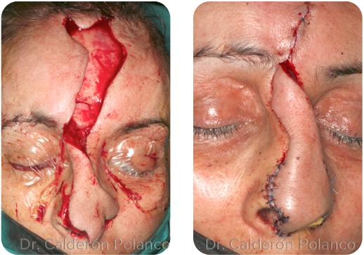 Colgajo Frontal reconstrucción nasal A2