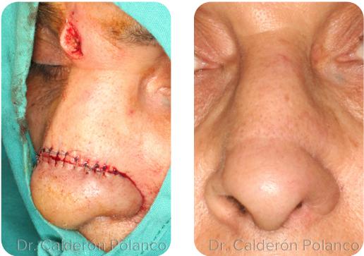 Colgajo Frontal reconstrucción nasal A4