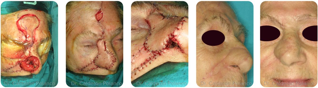 Colgajo-Frontal-reconstrucción-nasal-B2