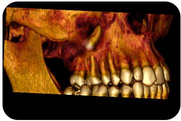 Cordal incluido en Seno maxilar