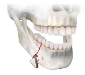 Fractura cuña basal