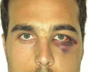 Fractura malar hematoma