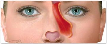 Menu Colgajo frontal nasal