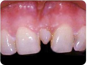 Mesiodens, supernumerario, cirugia oral, exodoncia