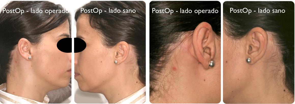 Parotidectomia sano:operado 3
