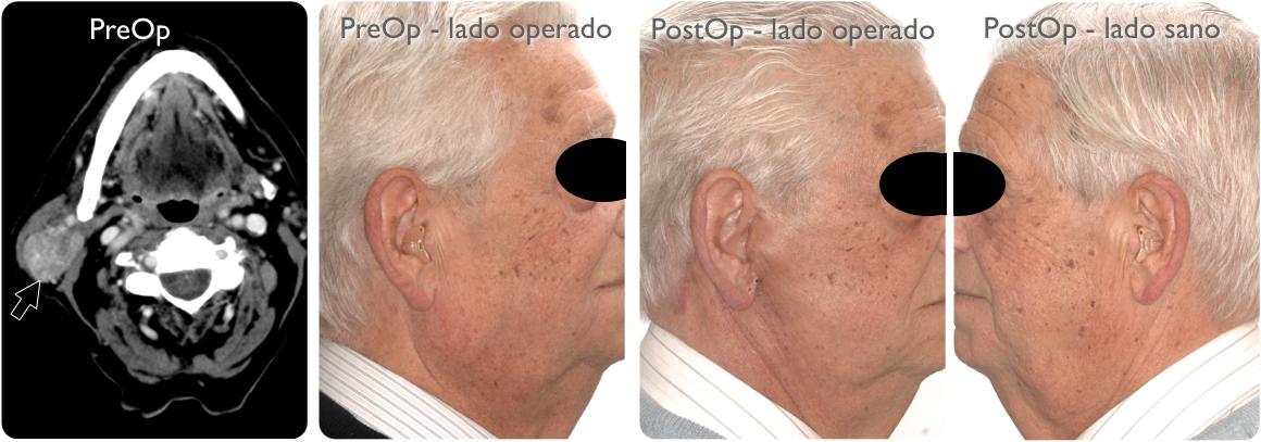 Parotidectomia sano:operado 4