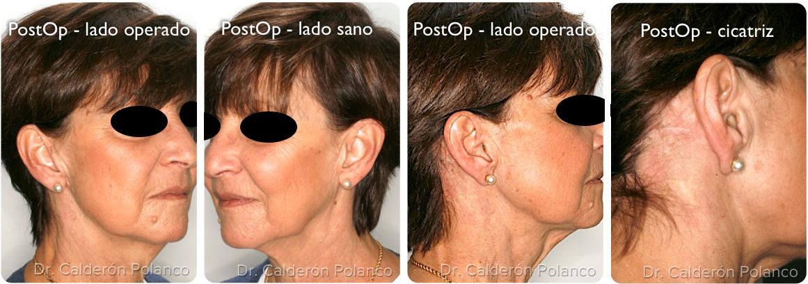 Parotidectomia sano:operado 5