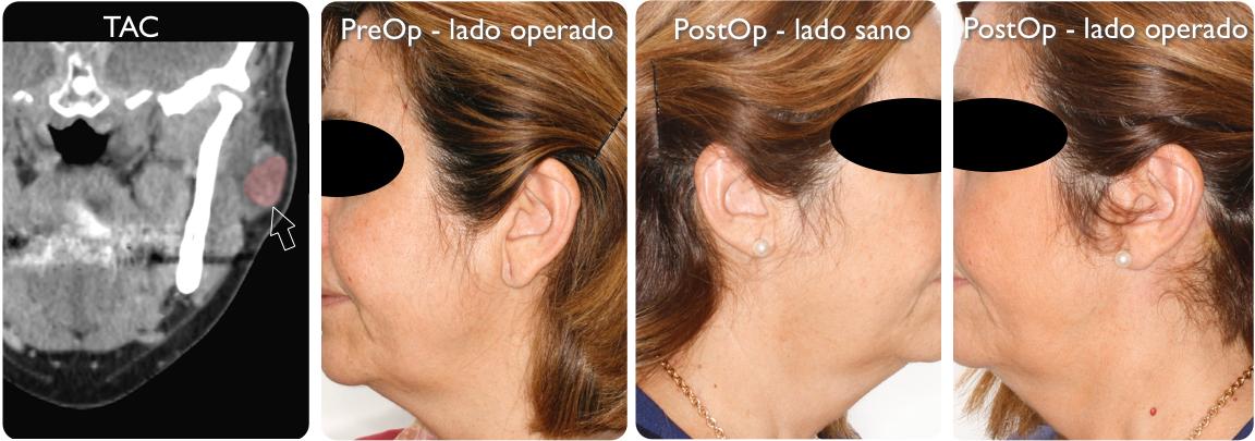 Parotidectomia sano:operado 7