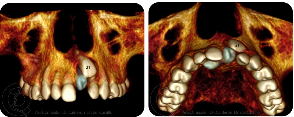 TAC supernumerarios, diente incluido, mesiodens, cirugia oral, asisccmaxilo