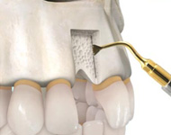 implantes04