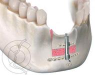 implantes06