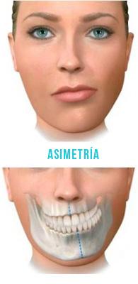 asimetria02