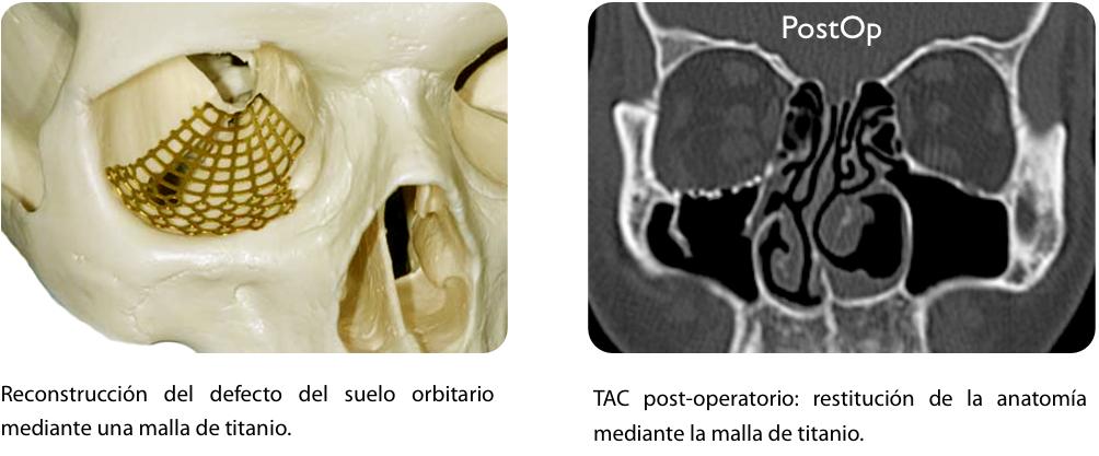 Dr. Javier Calderón Polanco » Fracturas del Suelo de Orbita