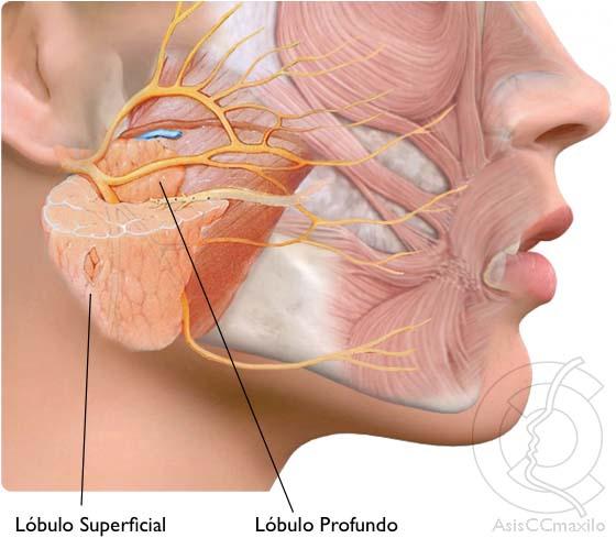 parotida, parotidectomia