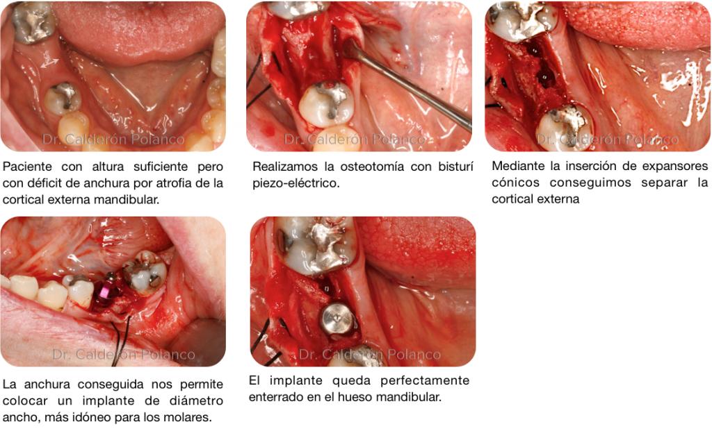 Caso Split mandibular