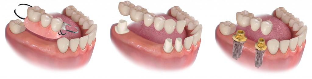 Puentes e implantes inf