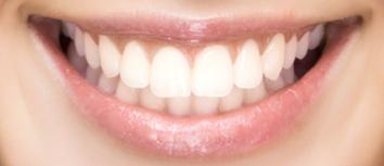 Sonrisa implantes 3