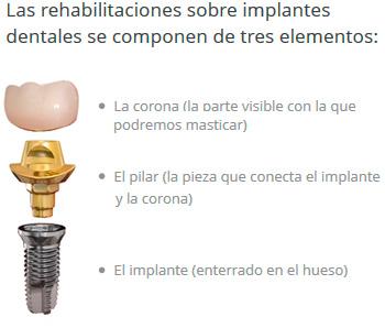 elementos_implantes