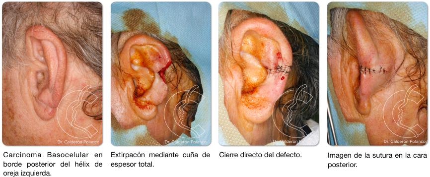 Reconstruccion oreja cierre directo 2
