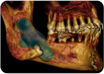 Cordal incluido & quiste angulo mandibular