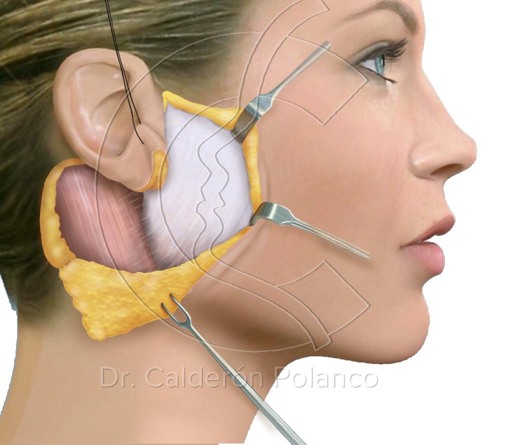 Parotida, incision parotida, cirugia parotida, maxilofacial, calderon polanco